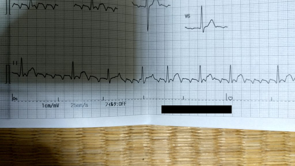 異常の心電図