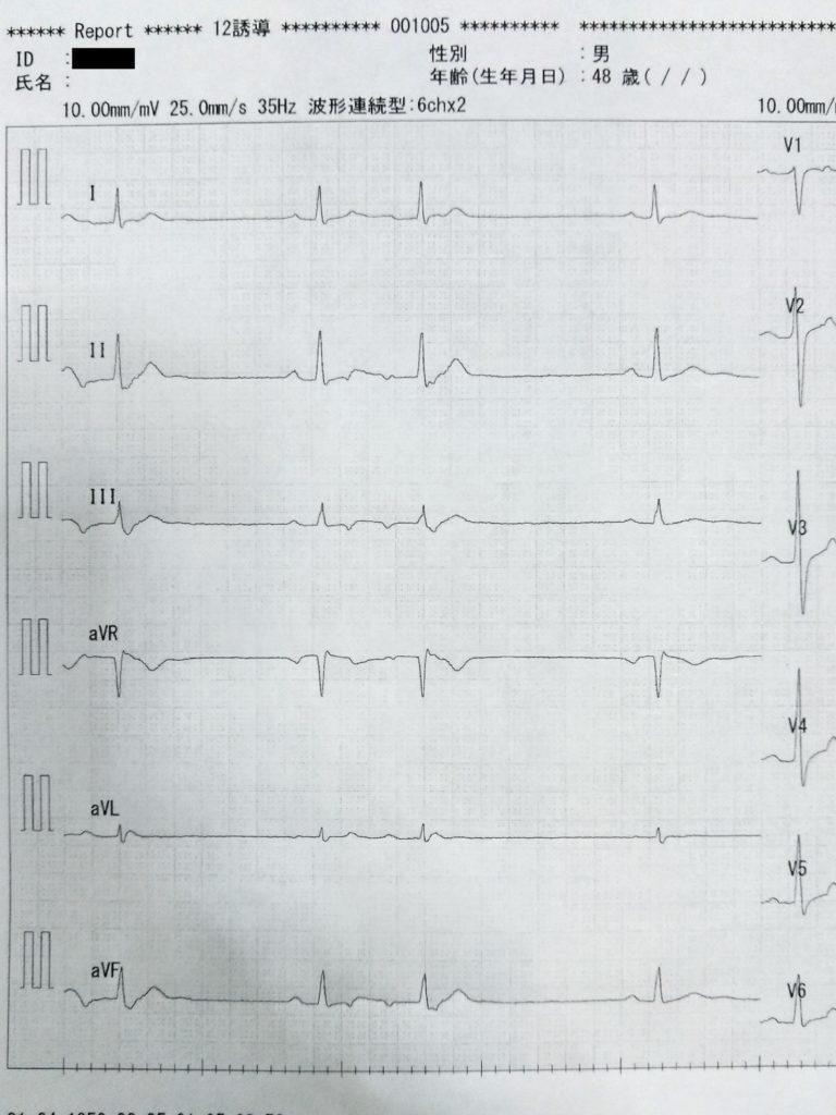 3年前の心電図結果