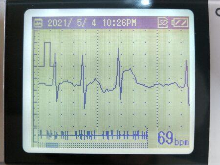 少しましな心電図